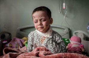Awra ha perso la vista durante un bombardamento avvenuto a Mosul
